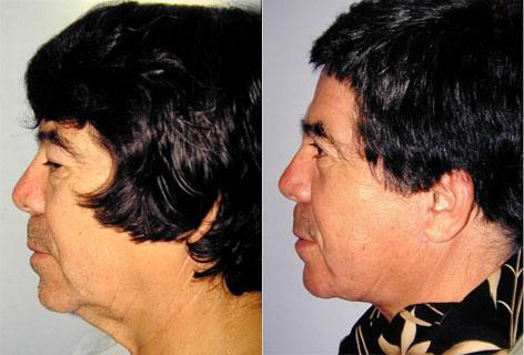 Facelift before and after photos in San Francisco, CA, Patient 14700