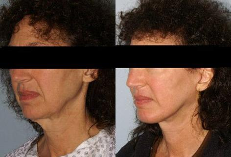 Facelift before and after photos in San Francisco, CA, Patient 14723