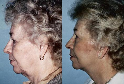 Facelift before and after photos in San Francisco, CA, Patient 14988
