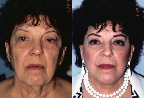Facelift before and after photos in San Francisco, CA, Patient 14998
