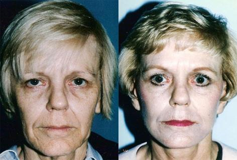 Facelift before and after photos in San Francisco, CA, Patient 15003