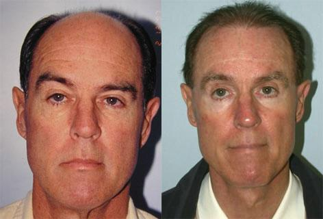 Facelift before and after photos in San Francisco, CA, Patient 15008