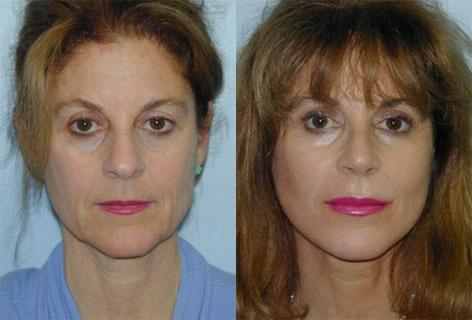 Facelift before and after photos in San Francisco, CA, Patient 15020