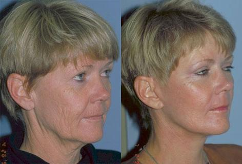 Facelift before and after photos in San Francisco, CA, Patient 15027