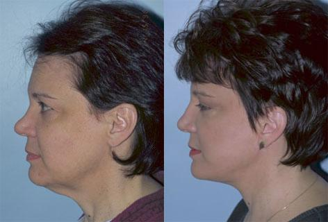 Facelift before and after photos in San Francisco, CA, Patient 15032