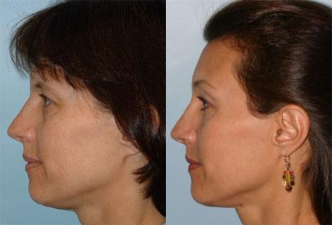 Facelift before and after photos in San Francisco, CA, Patient 15039