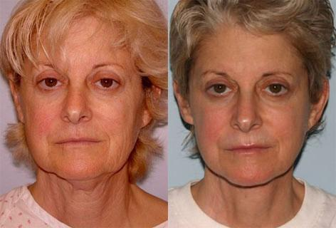 Facelift before and after photos in San Francisco, CA, Patient 15046