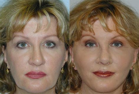 Facelift before and after photos in San Francisco, CA, Patient 15053