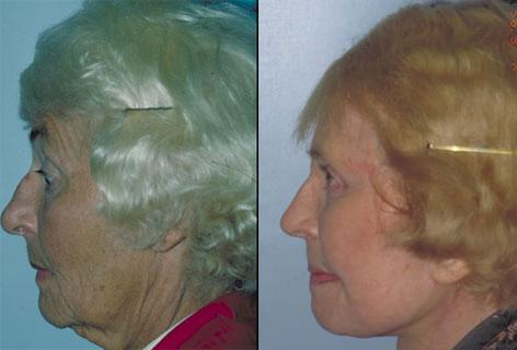 Facelift before and after photos in San Francisco, CA, Patient 15060