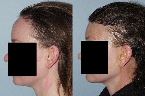 Hair Line Lowering before and after photos in San Francisco, CA, Patient 15093