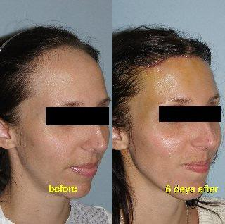 Hair Line Lowering before and after photos in San Francisco, CA, Patient 15166