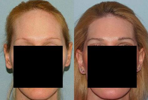 Hair Line Lowering before and after photos in San Francisco, CA, Patient 15377