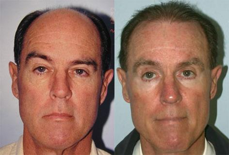 Blepharoplasty before and after photos in San Francisco, CA, Patient 13036