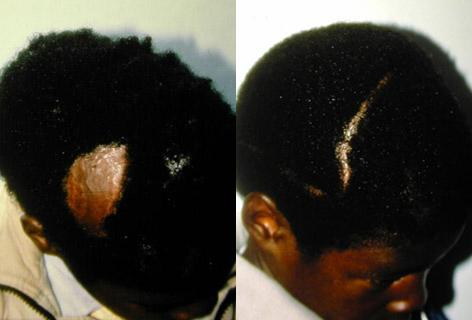 Hair Reconstructive Scalp before and after photos in San Francisco, CA, Patient 13839