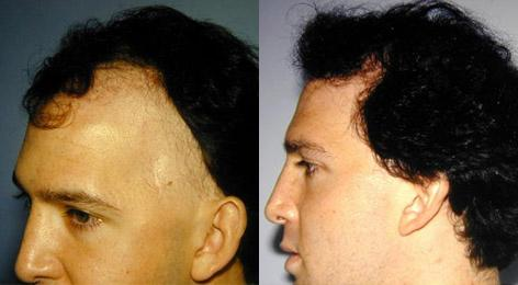 Hair Reconstructive Scalp before and after photos in San Francisco, CA, Patient 13842