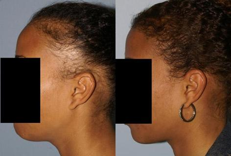 Hair Reconstructive Scalp before and after photos in San Francisco, CA, Patient 13859