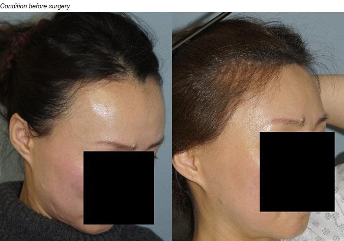 Hair Line Lowering before and after photos in San Francisco, CA, Patient 14325