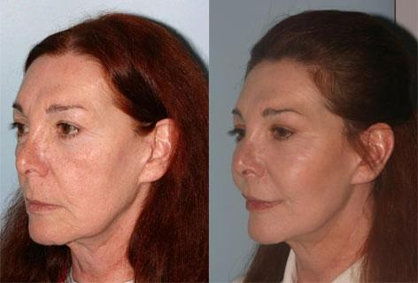 Facelift before and after photos in San Francisco, CA, Patient 14420