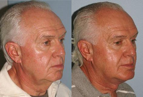 Facelift before and after photos in San Francisco, CA, Patient 14707