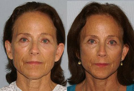 Facelift before and after photos in San Francisco, CA, Patient 14718