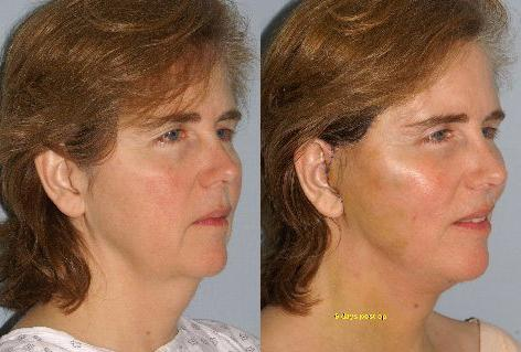 Facelift before and after photos in San Francisco, CA, Patient 14983