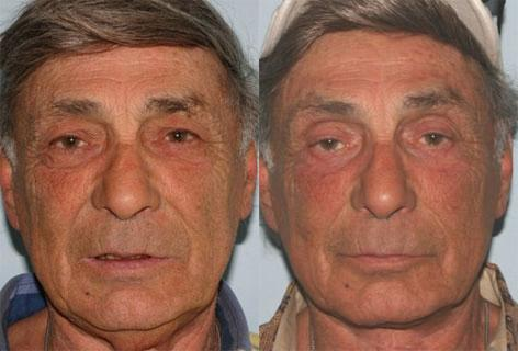 Facelift before and after photos in San Francisco, CA, Patient 15065