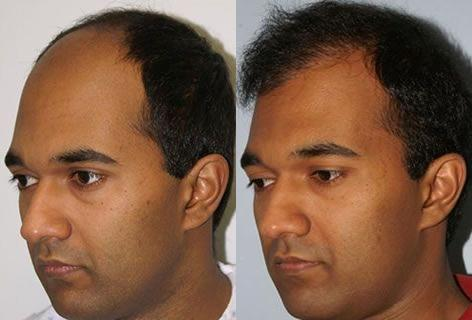 Follicular Unit Hair Grafting before and after photos in San Francisco, CA, Patient 13740