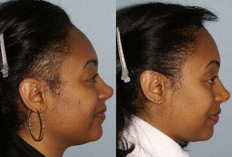 Follicular Unit Hair Grafting before and after photos in San Francisco, CA, Patient 13790