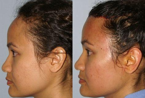 Hair Line Lowering before and after photos in San Francisco, CA, Patient 13956