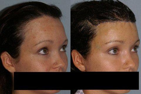 Hair Line Lowering before and after photos in San Francisco, CA, Patient 14219