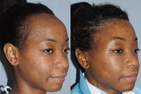 Hair Line Lowering before and after photos in San Francisco, CA, Patient 14233