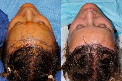 Hair Line Lowering before and after photos in San Francisco, CA, Patient 14244