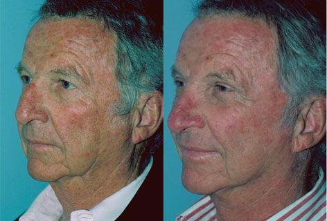 Facelift before and after photos in San Francisco, CA, Patient 14605