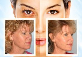 Facial Plastic Surgery in Oakland